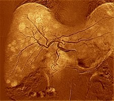 Secondary liver cancer, 3D angiogram