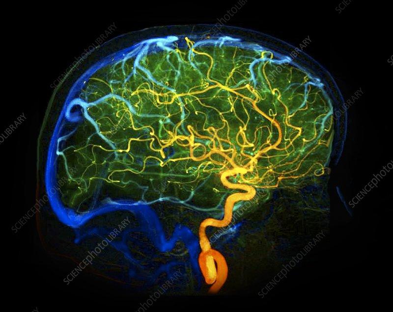 blood vessels arteries. Brain lood vessels, 3D