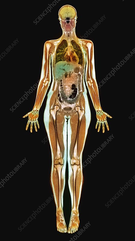 Thin woman, MRI scan