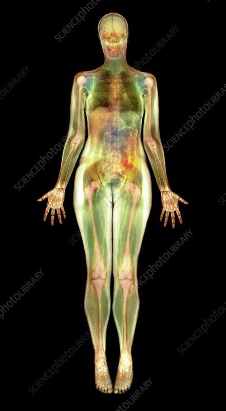 Thin woman, MRI scan