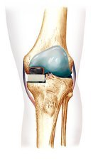 Partial knee replacement, artwork