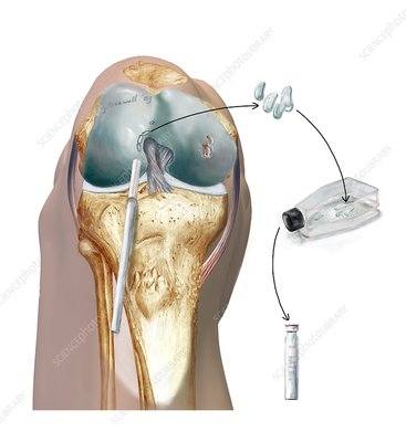 Knee cartilage reconstruction, artwork