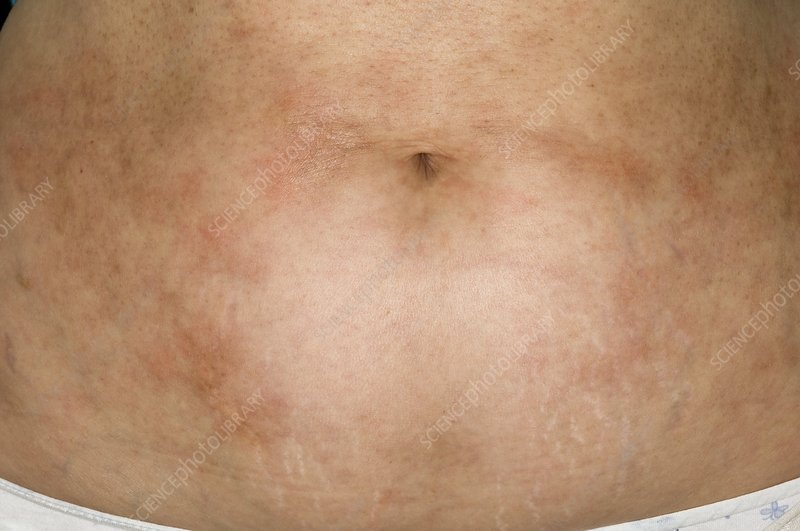Rash on abdomen after cancer treatment