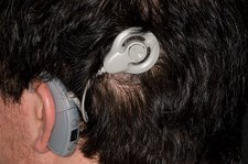 Auditory implant for hearing