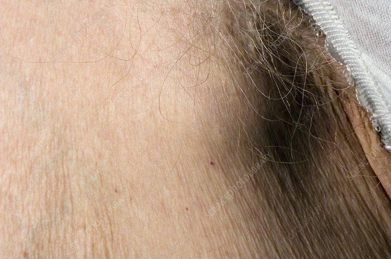swollen lymph nodes groin wwwpixsharkcom images