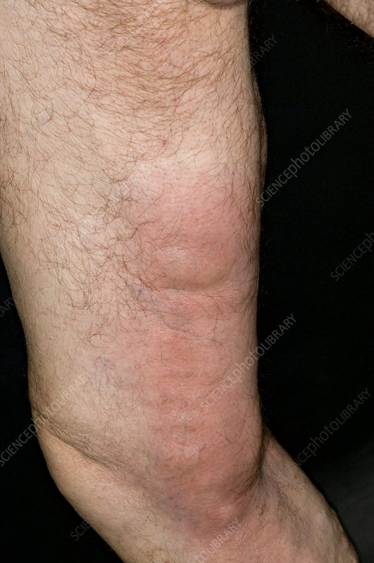 Thrombophlebitis in the thigh