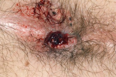 Rupture of a thrombosed pile