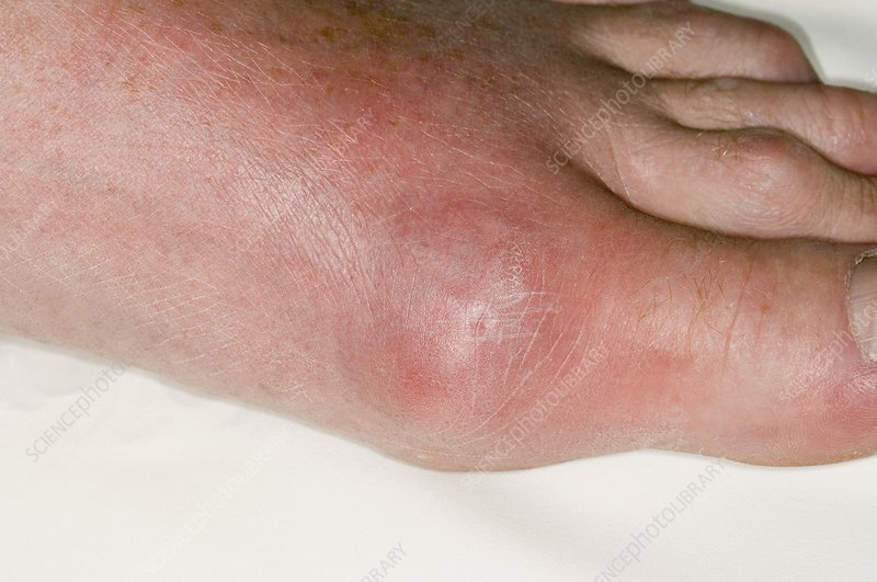 Gout of the big toe