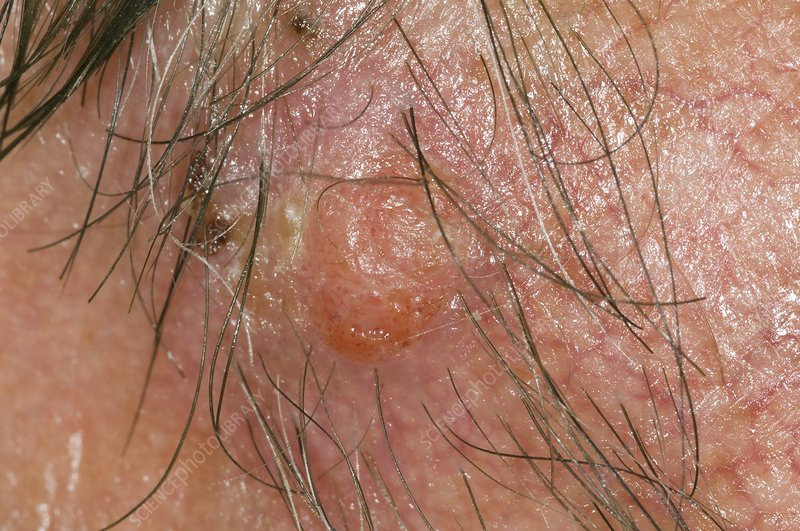 Squamous cell cancer on the face