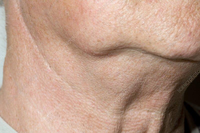 Neck lump in non-Hodgkin's lymphoma - Stock Image - C007