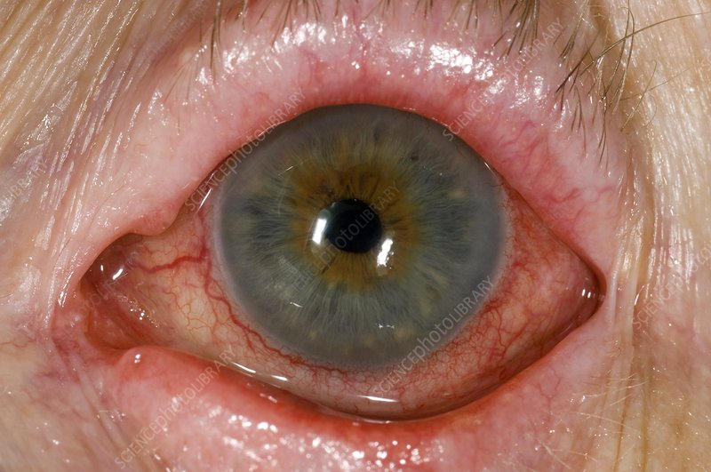Eye irritation after trabeculectomy