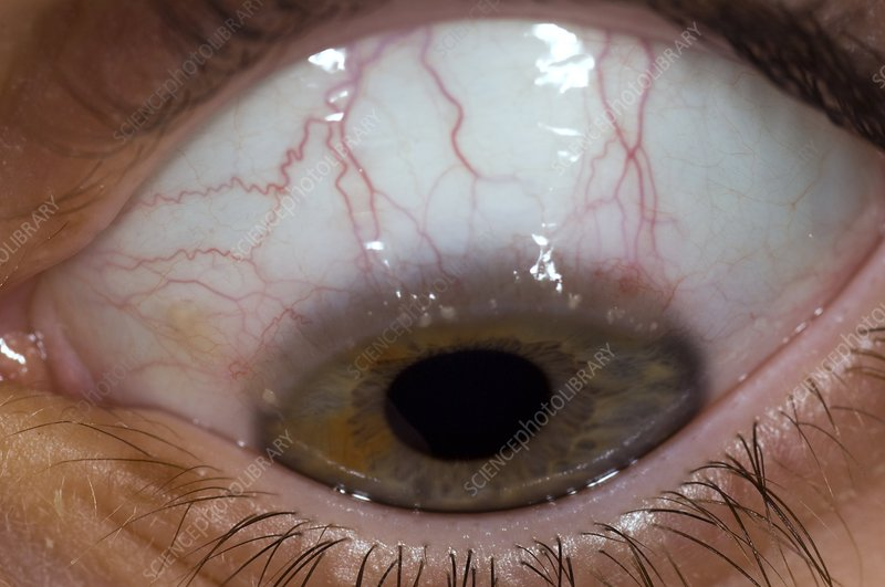 Allergic conjunctivitis of the eye
