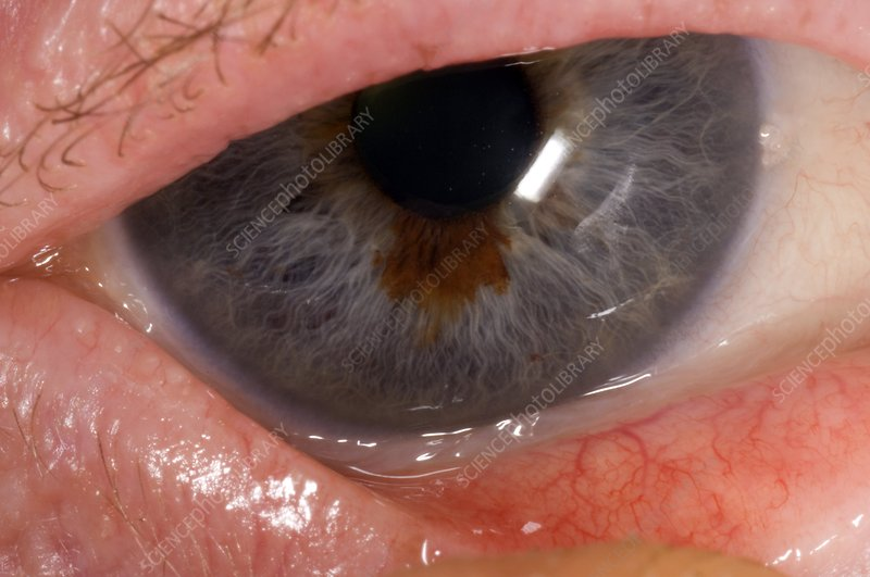 Benign naevus in the iris of the eye