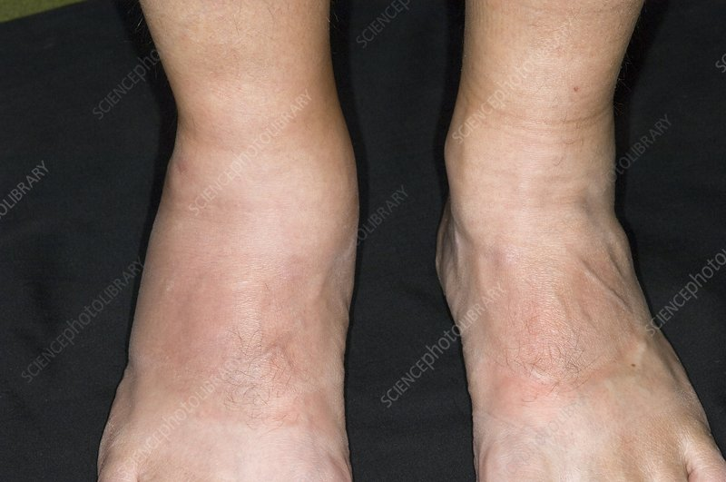 Psoriatic arthritis of the ankle