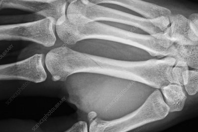 Spiral fracture of the hand, X-ray