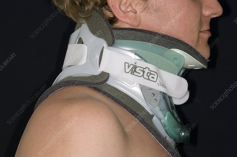 Neck collar for fractured spine