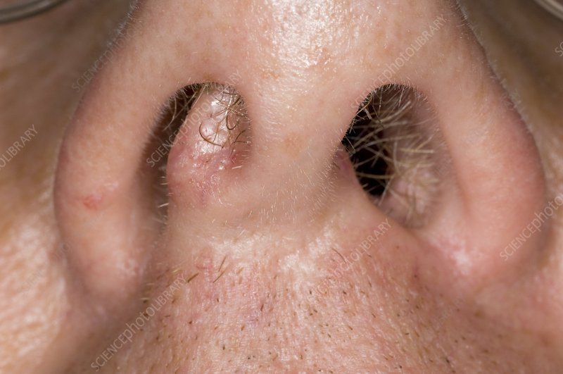 Why Do Septum Rings Smell