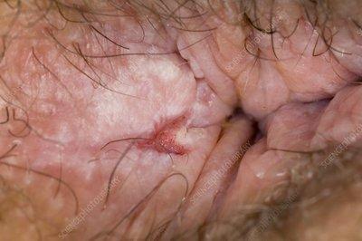 Anal fissure not healing