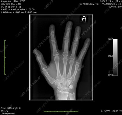 Normal hand, digital X-ray