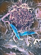 Macrophage attacking a foreign body, SEM