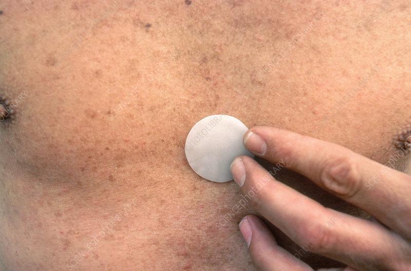 Effects of viagra and nitroglycerin