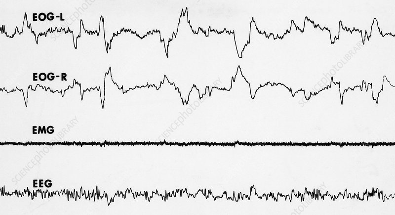 Polygraph Tracings of REM Sleep