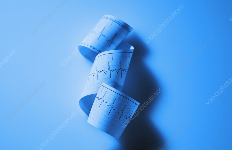 Blue EKG Cardiac Rhythm Strip