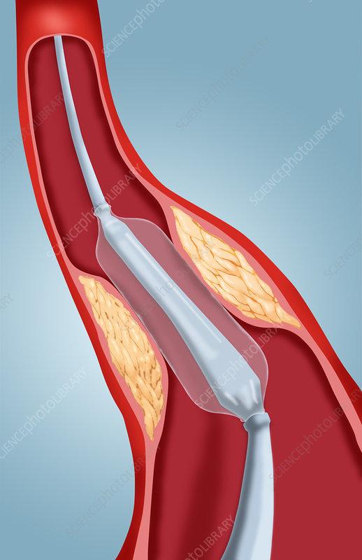 Balloon Angioplasty, 2 of 4