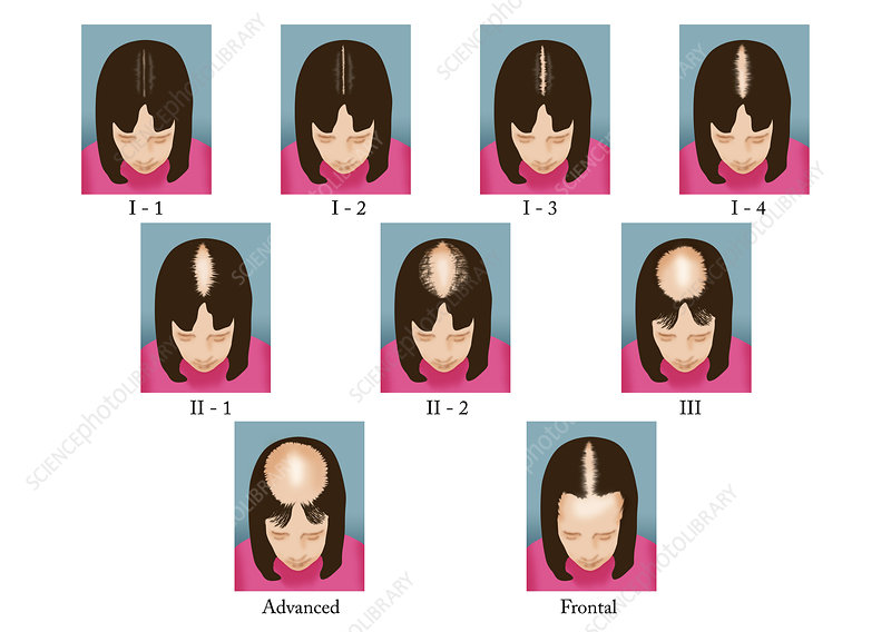 Stages of Female Hair Loss