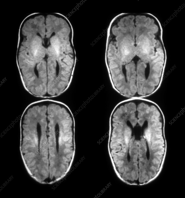Agenesis of the Corpus Callosum, MRI