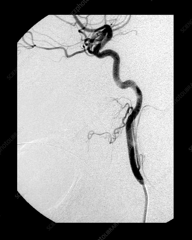 Internal Carotid Artery, Angiogram