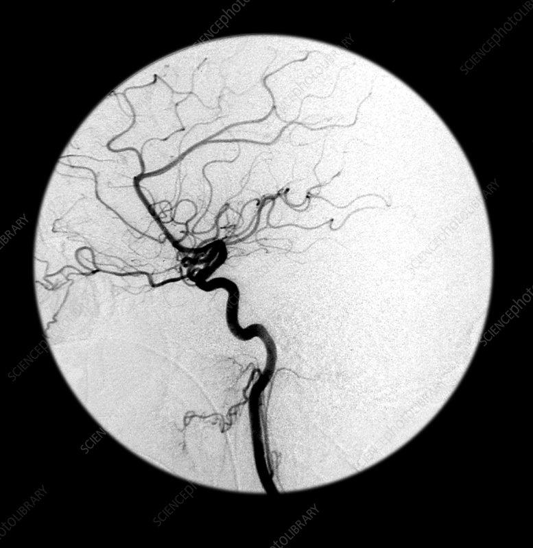 Internal Carotid Artery, Angiogram
