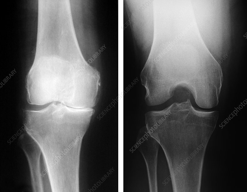 X-Rays of Normal and Degenerative Knees
