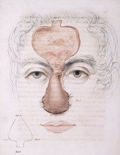 19th Century Facial Reonstruction