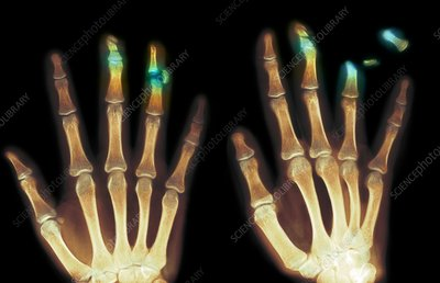 Fingertip laceration injuries, X-rays