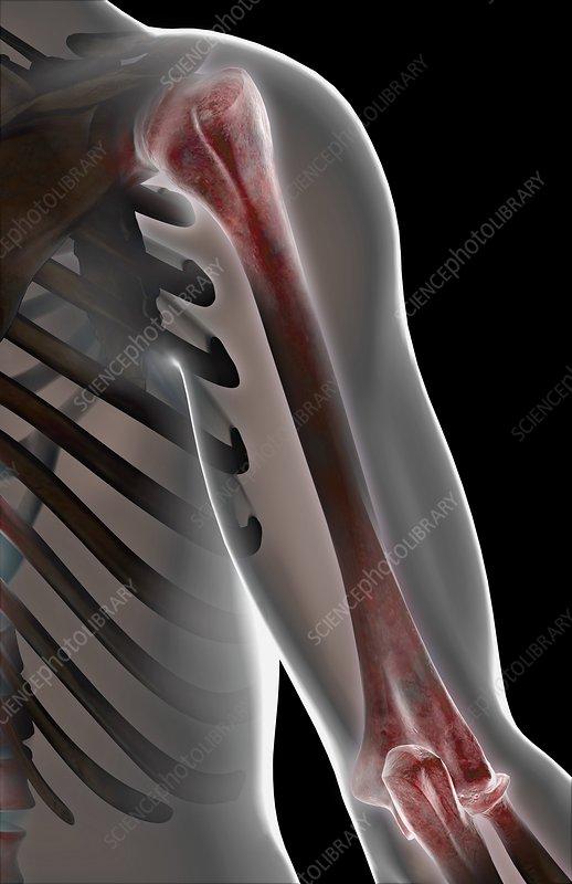 The bones of the shoulder