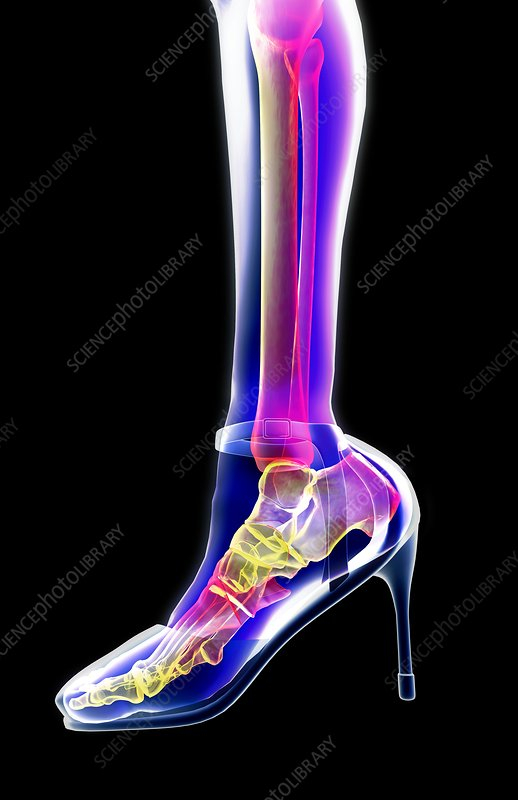 Xray of woman's foot