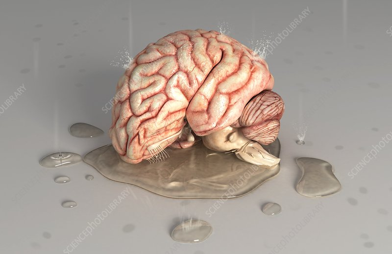 Brain in puddle (Depression)