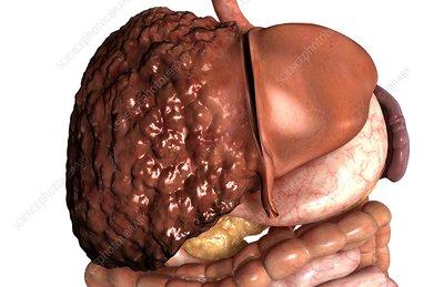 glucosamine for hip pain