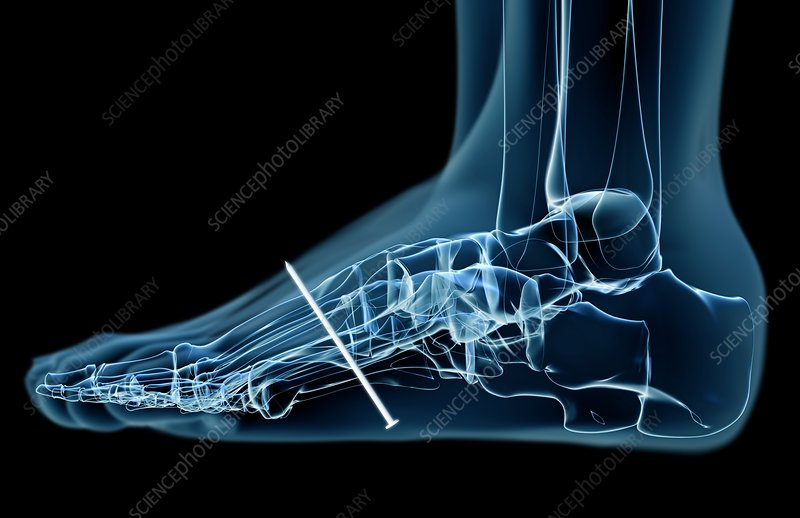 Xray of injury