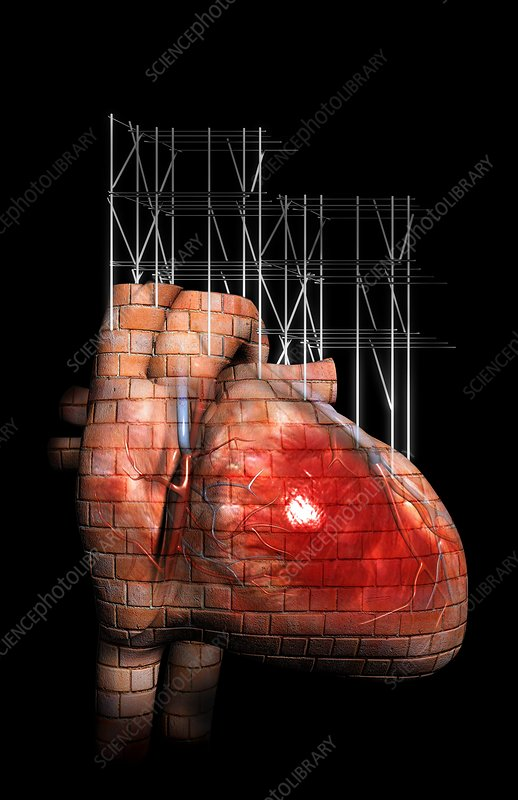 Heart construction