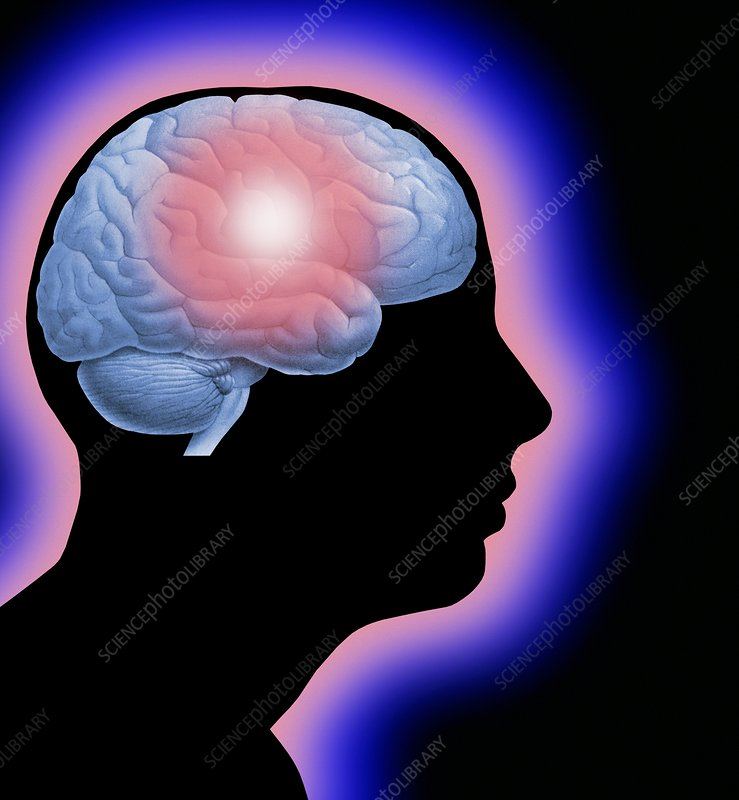 Parkinson's disease, conceptual image