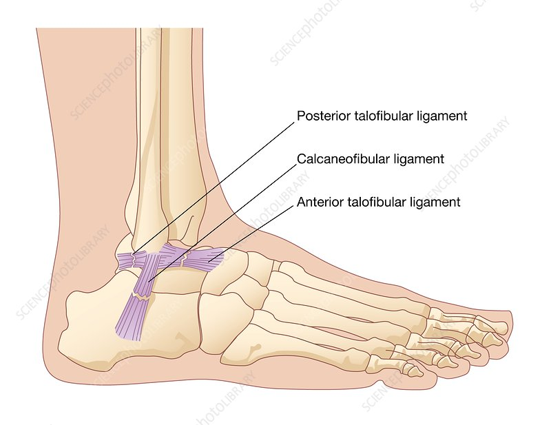 Torn ankle ligaments, artwork - Stock Image C008/3579 - Science ...