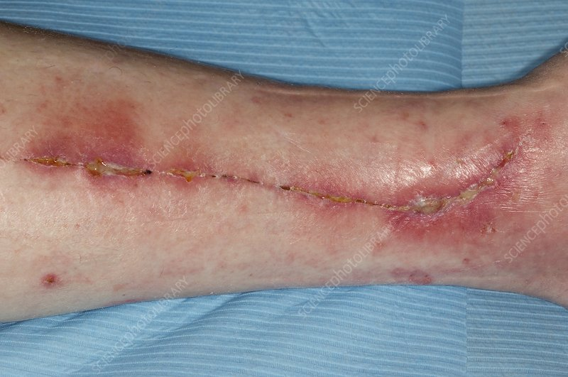 Infected heart bypass wound on leg