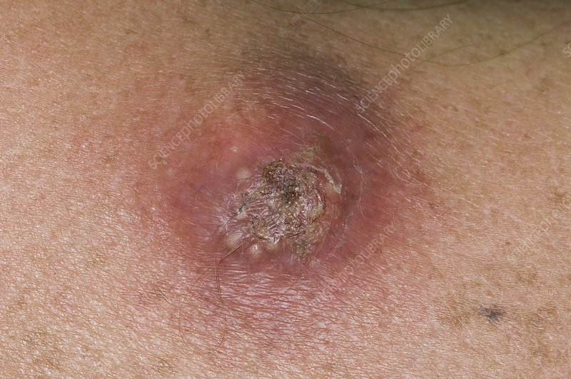 Sebaceous cyst on the shoulder