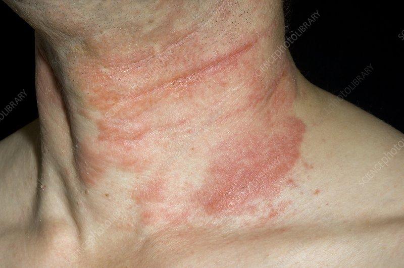 hypothyroid dry skin