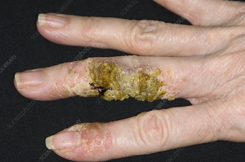 Infected eczema on the fingers