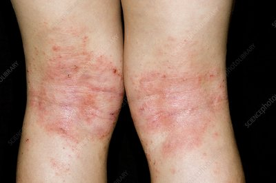 Atopic eczema on back of knees