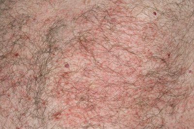 Acute eczema on body in sarcoidosis