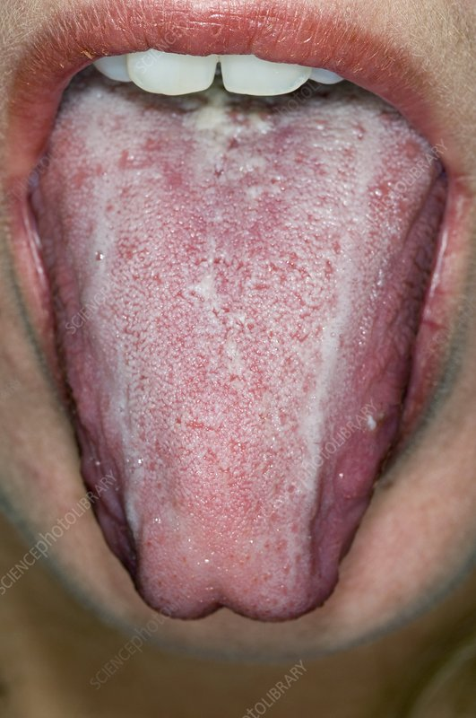 Oral thrush in an alcoholic patient